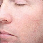 Halo Laser Before & After Patient #4673