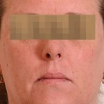 Halo Laser Before & After Patient #4676