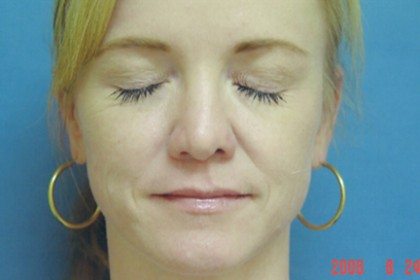 Injectables Before & After Patient #4524