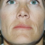 Injectables Before & After Patient #4521