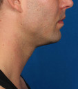 Kybella Before & After Patient #4723