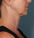 Kybella Before & After Patient #4728