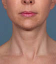 Kybella Before & After Patient #4718