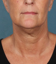 Kybella Before & After Patient #4695
