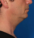 Kybella Before & After Patient #4733