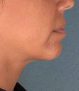 Kybella Before & After Patient #4690