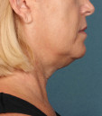 Kybella Before & After Patient #4700