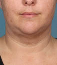 Kybella Before & After Patient #4705