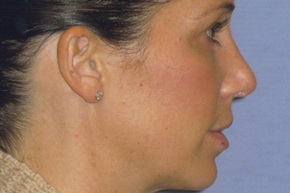 Rhinoplasty Before & After Patient #4614