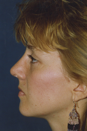 Rhinoplasty Before & After Patient #4589
