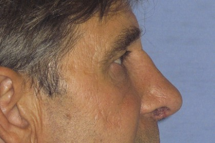 Rhinoplasty Before & After Patient #4598