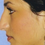 Rhinoplasty Before & After Patient #4619