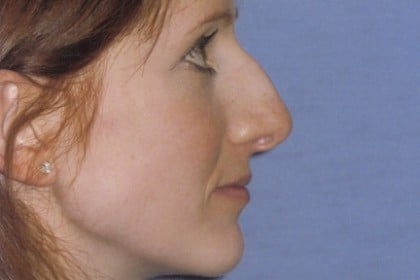 Rhinoplasty Before & After Patient #4624