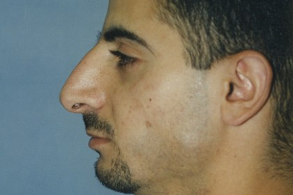 Rhinoplasty Before & After Patient #4633