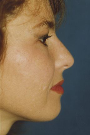 Rhinoplasty Before & After Patient #4592