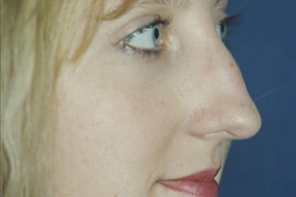 Rhinoplasty Before & After Patient #4603