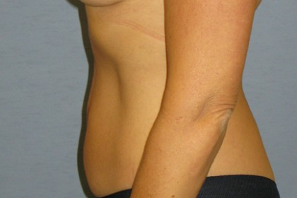 Tummy Tuck Before & After Patient #4890
