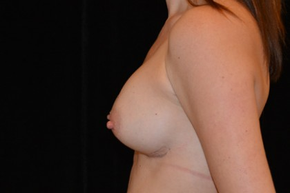 Breast Augmentation Before & After Patient #4855