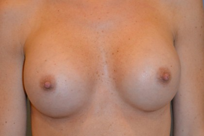 Breast Augmentation Before & After Patient #4901