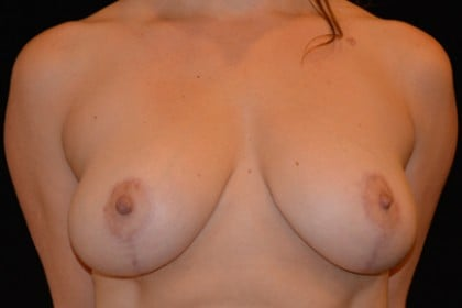 Breast Lift Before & After Patient #4827