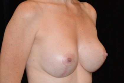 Breast Implants Revision Before & After Patient #4814