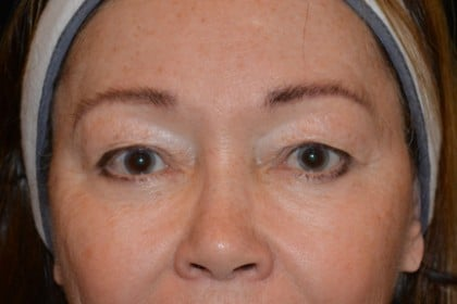 Eyelid Surgery Before & After Patient #4838