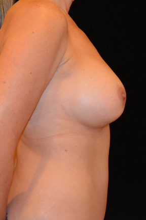Breast Augmentation Before & After Patient #4868