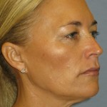 Eyelid Surgery Before & After Patient #4880