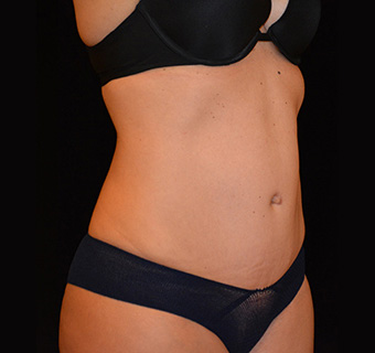 Tummy Tuck Before & After Patient #5625