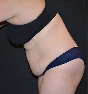 Tummy Tuck Before & After Patient #5630
