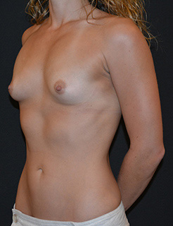 Breast Augmentation Before & After Patient #5643
