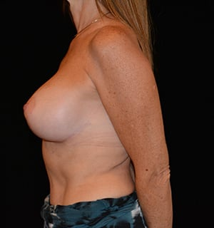 Breast Augmentation Before & After Patient #5640