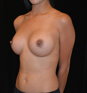 Breast Augmentation Before & After Patient #5634