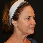 Facelift Before & After Patient #5637