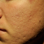 ProCell Before & After Patient #6377