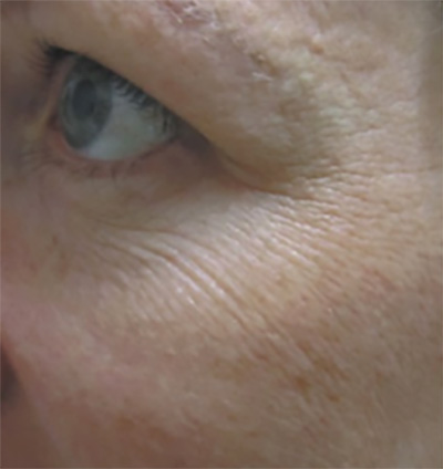 ProCell Before & After Patient #6334