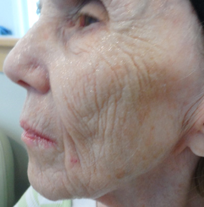 ProCell Before & After Patient #6345