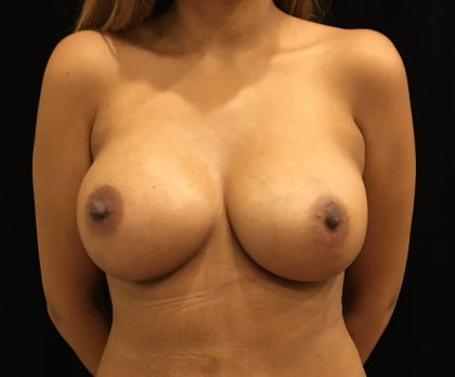 Breast Augmentation Before & After Patient #6554