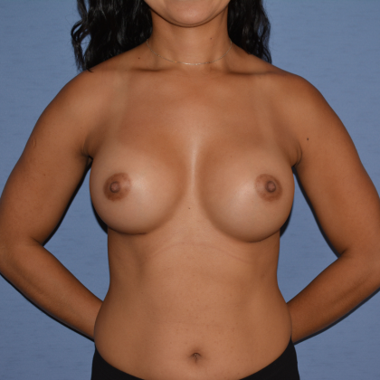 Breast Augmentation Before & After Patient #6621