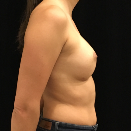 Breast Augmentation Before & After Patient #6607