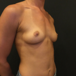 Breast Augmentation Before & After Patient #6612