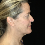 Necklift Before & After Patient #6626