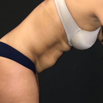 Tummy Tuck Before & After Patient #6631