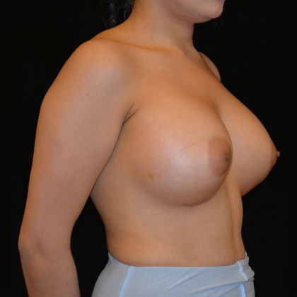 Breast Augmentation Before & After Patient #6579