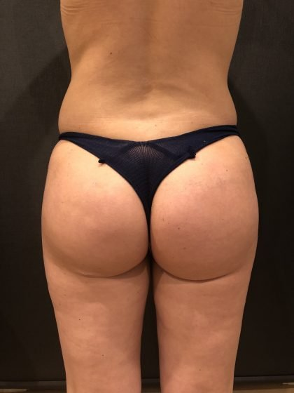 Fat Transfer to Butt Before & After Patient #6644