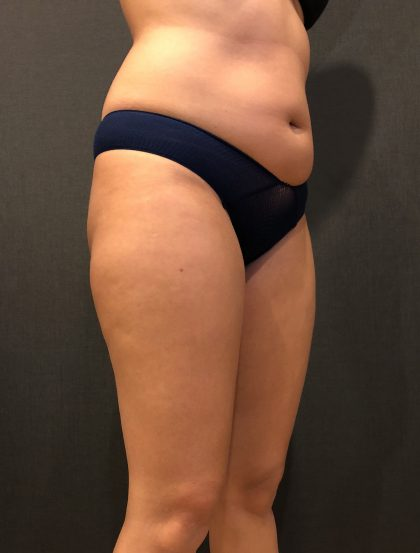 Liposuction Before & After Patient #6639