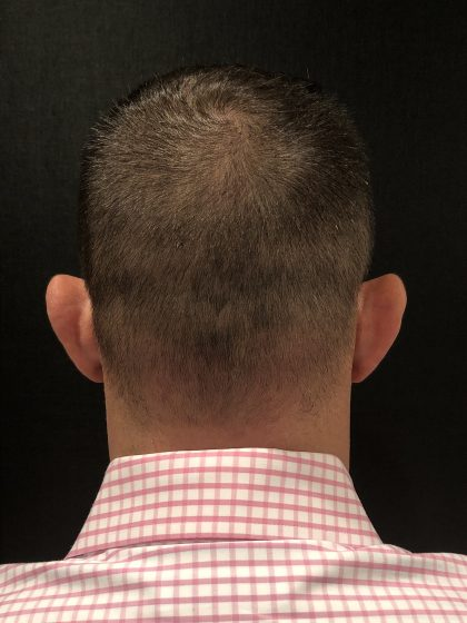 Hair Loss Before & After Patient #6985