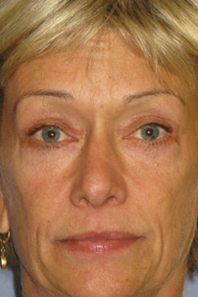 Eyelid Surgery Before & After Patient #7033