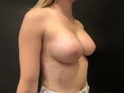 Breast Augmentation Before & After Patient #7225