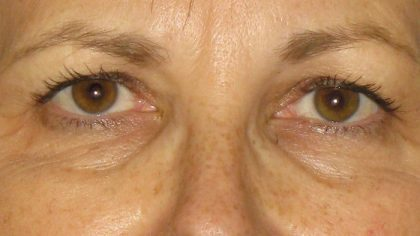 Eyelid Surgery Before & After Patient #7086